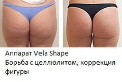 Аппарат Vela Shape - коррекция фигуры