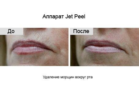 пилинг лица Jet Peel