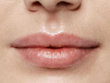 Увеличение губ фото после