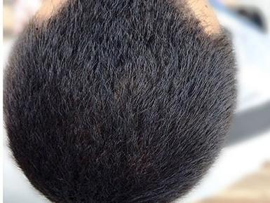 Лазерное лечение кожи головы фото после