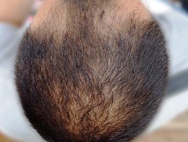 Лазерное лечение кожи головы фото до